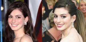 anne-hathaway-plastic-surgery-1