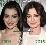 anne-hathaway-plastic-surgery-2