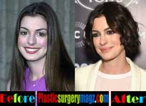 anne-hathaway-plastic-surgery-3