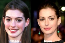 anne-hathaway-plastic-surgery
