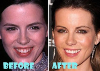 kate-beckinsale-before-and-after-1