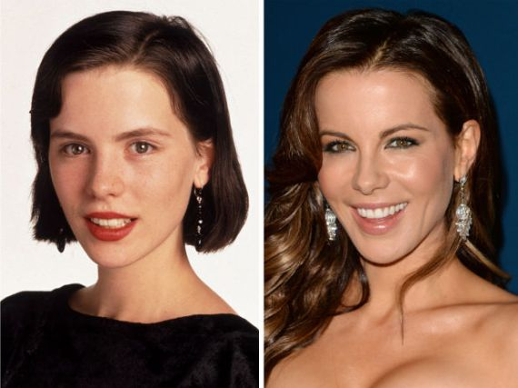 kate-beckinsale-before-and-after