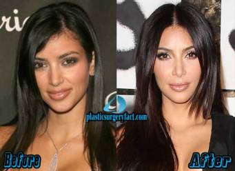 kim-kardashian-before-and-after-1