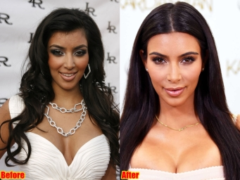 kim-kardashian-before-and-after-2