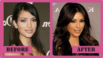 kim-kardashian-before-and-after-3