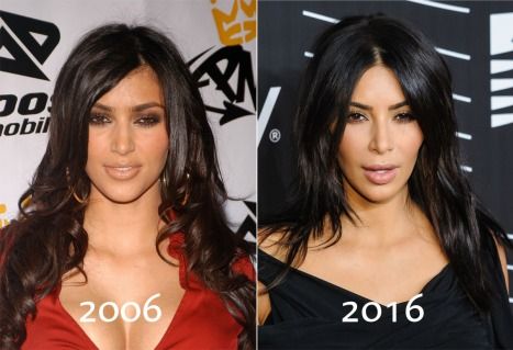 kim-kardashian-before-and-after-5