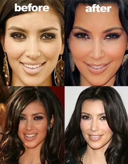 kim-kardashian-before-and-after