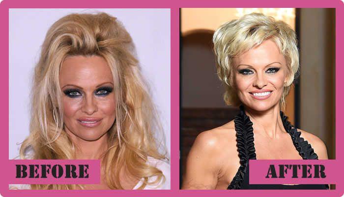 pamela anderson plastic surgery news celebrities