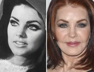 priscilla-presley-plastic-surgery-before-and-after-1